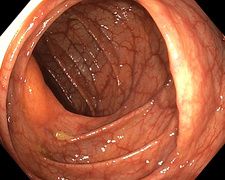 Healthy colon, endoscope view