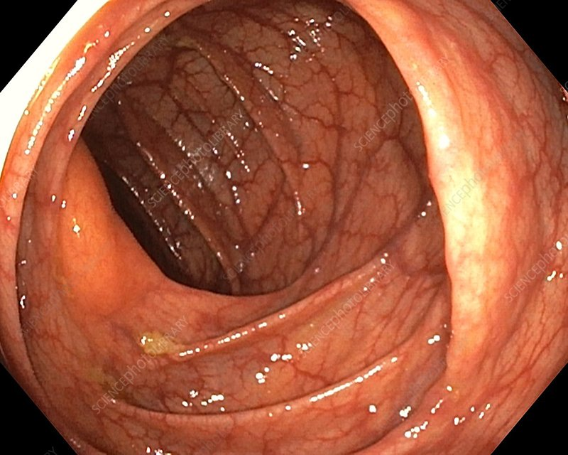 what is a healthy colon