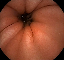 Healthy gastric antrum, endoscope view