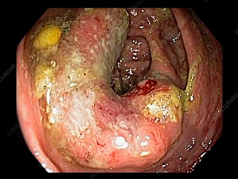 Colon Cancer Endoscope View Stock Image C033 9743 Science Photo Library