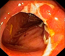 Crohn's disease in the ileum, endoscopic view