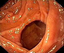 Diverticulum of the duodenum, endoscope view