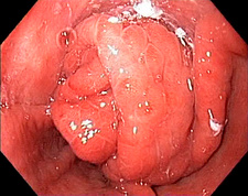 Gastro-oesophageal prolapse in hernia, endoscope view