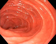 Healthy duodenum, endoscope view