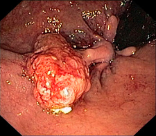 Anal polyp, endoscope view