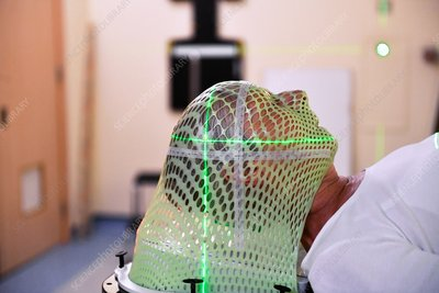 Brain cancer radiotherapy