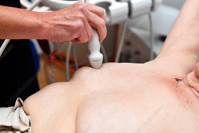 ULTRASOUND OF THE BREAST - Pathology