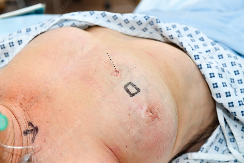 Breast surgery and the wire