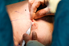 Suturing after breast cancer surgery