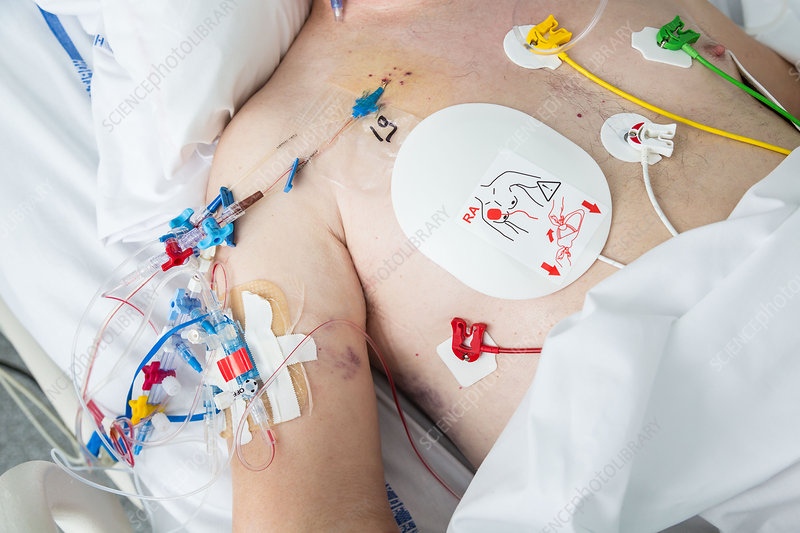 Defibrillation electrode on patient