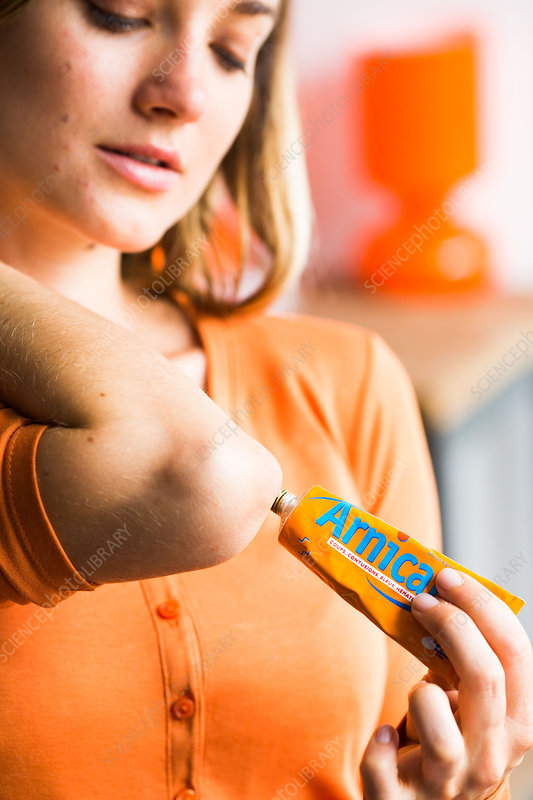 Woman using arnica ointment