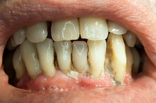 Teeth covered with plaque and tartar