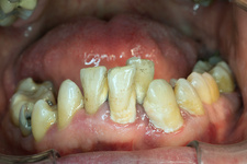 Crowded teeth covered with plaque and tartar