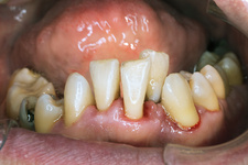 Teeth after ultrasonic cleaning