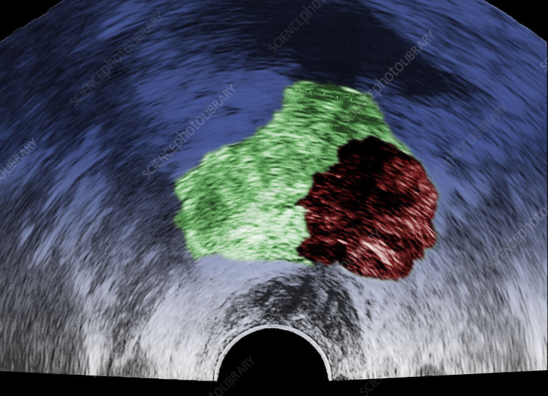 Prostate cancer, ultrasound scan