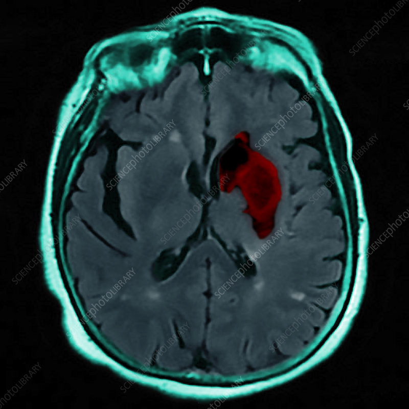Stroke, MRI and CT scans