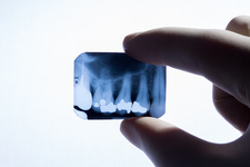 Teeth, X-ray