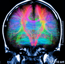 Brain MRI and white matter fibres