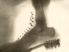 Foot and shoe X-ray, 1896