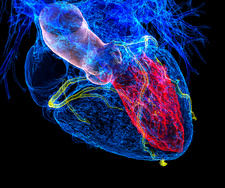 Heart in coronary artery disease, 3D CT scan