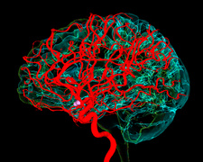 Blood vessels supplying the brain, illustration