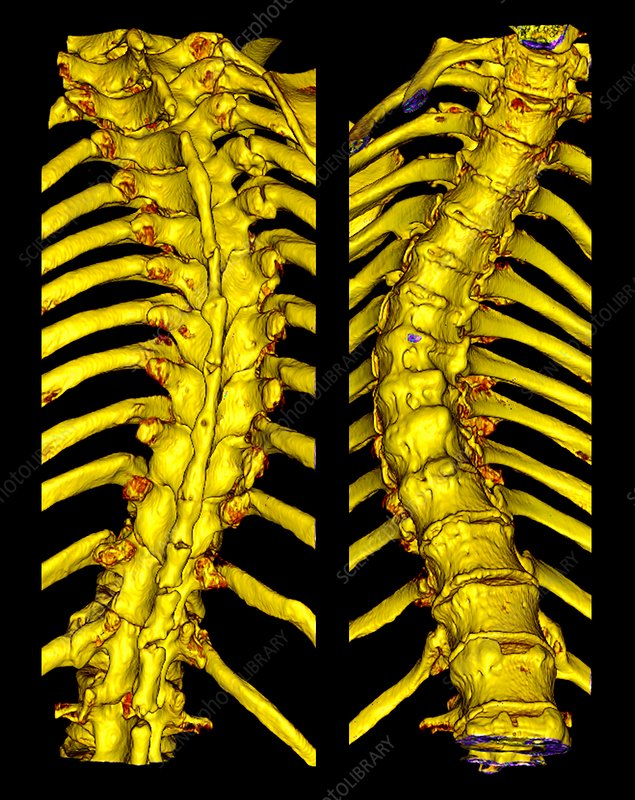 Scoliosis of the thoracic spine, 3D CT scan
