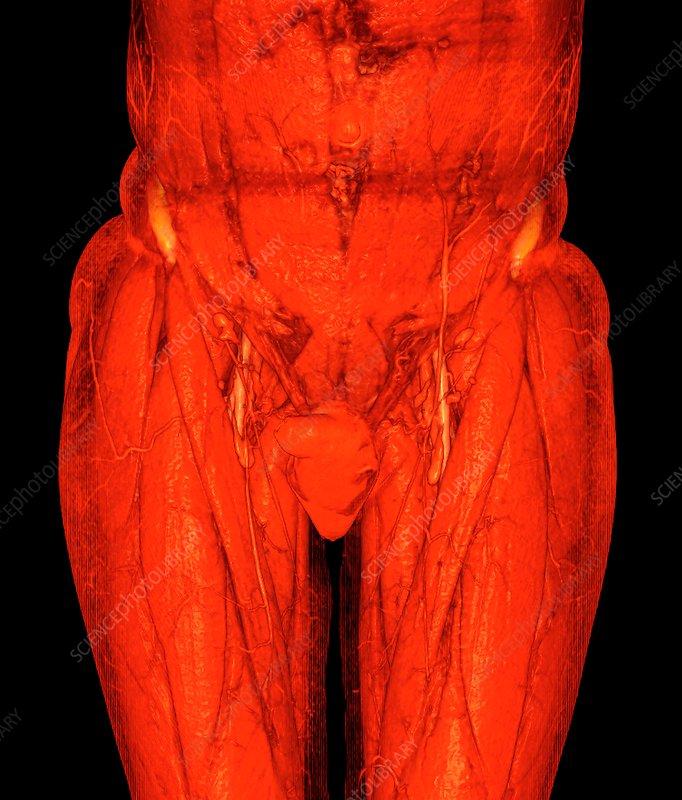 Male Groin Anatomy Illustration Stock Image C0345273 Science