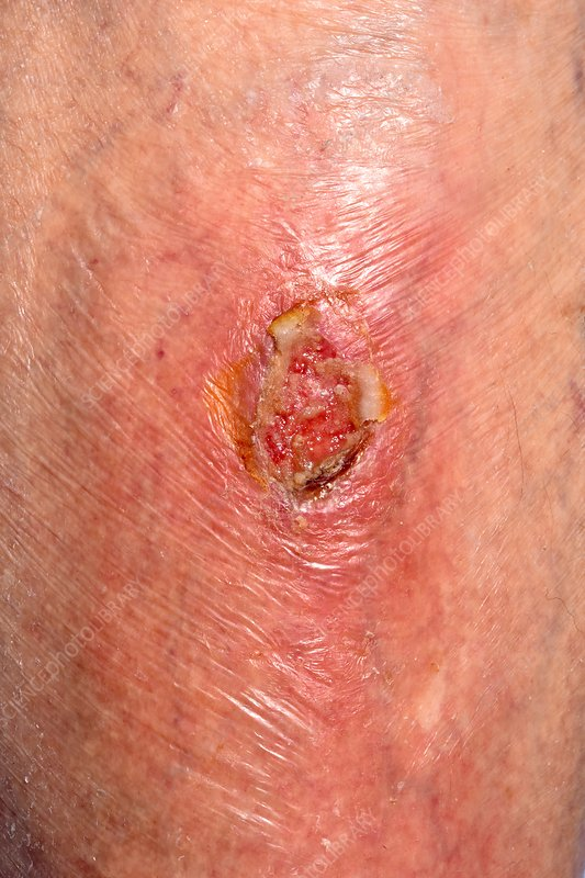 Infected ulcer
