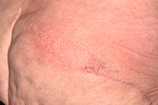 Dermatitis following shingles infection