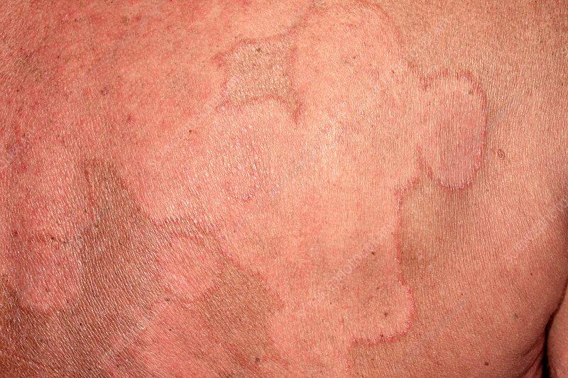 Ringworm rash - Stock Image - C034/5330 - Science Photo Library