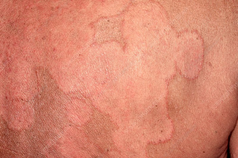 Ringworm rash