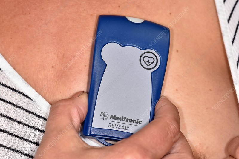 Insertable heart monitor