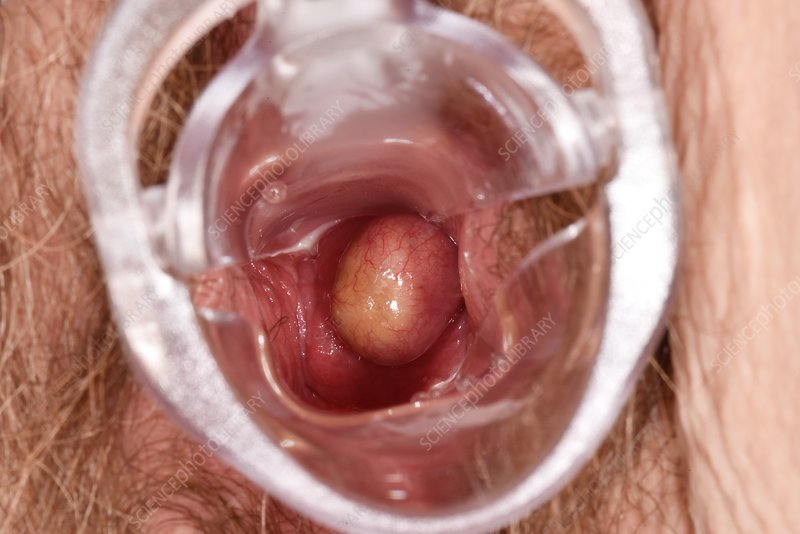 You pictures of vulva with polyps