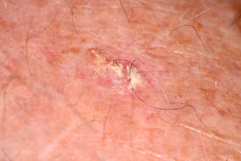 Solar keratosis - Stock Image - C034/5377 - Science Photo