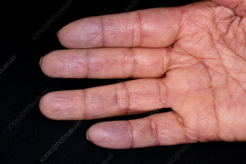 Raynauds phenomenon in CREST syndrome