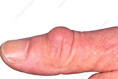 Tratamentul artritei degetelor in