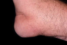 Gout in the elbow
