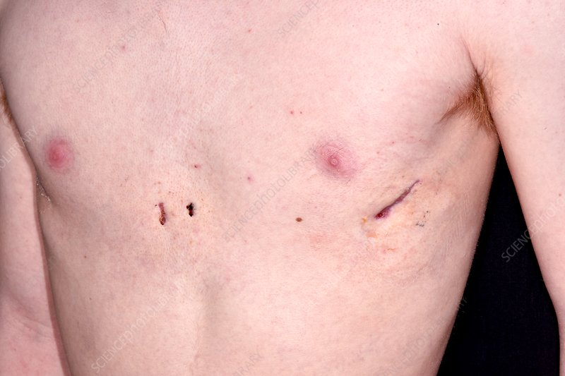 Hollowed chest following corrective surgery
