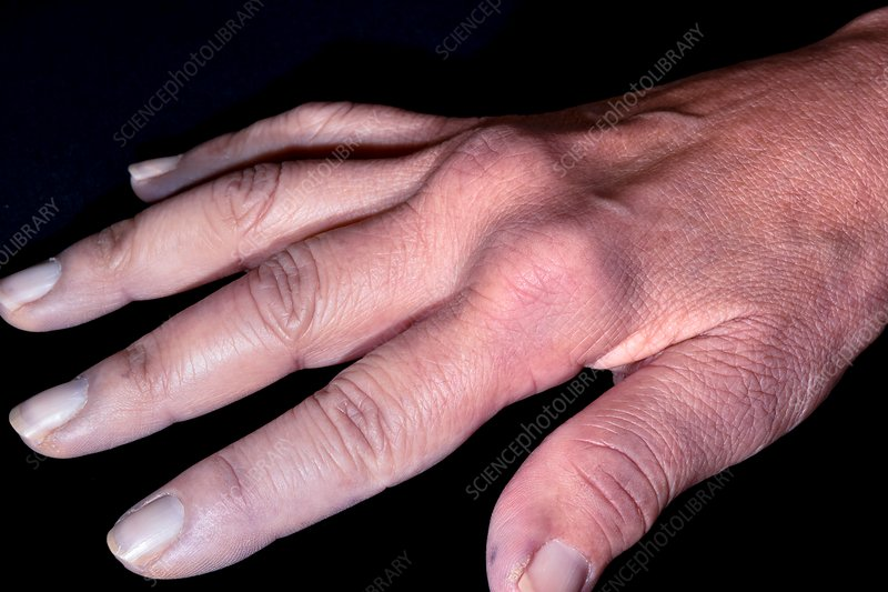 Hand in CREST syndrome