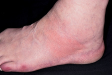 Swollen ankle in gout