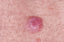 Basal cell carcinoma skin cancer