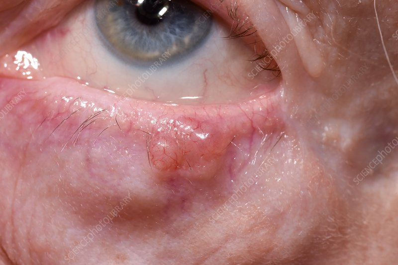 Basal cell carcinoma of the eye