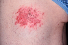 Grazed thigh in bike accident
