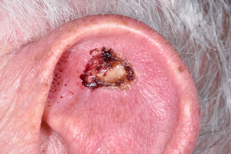 Basal cell carcinoma skin cancer after removal