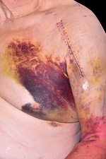 Bruising following fall and shoulder surgery