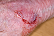 Hand laceration
