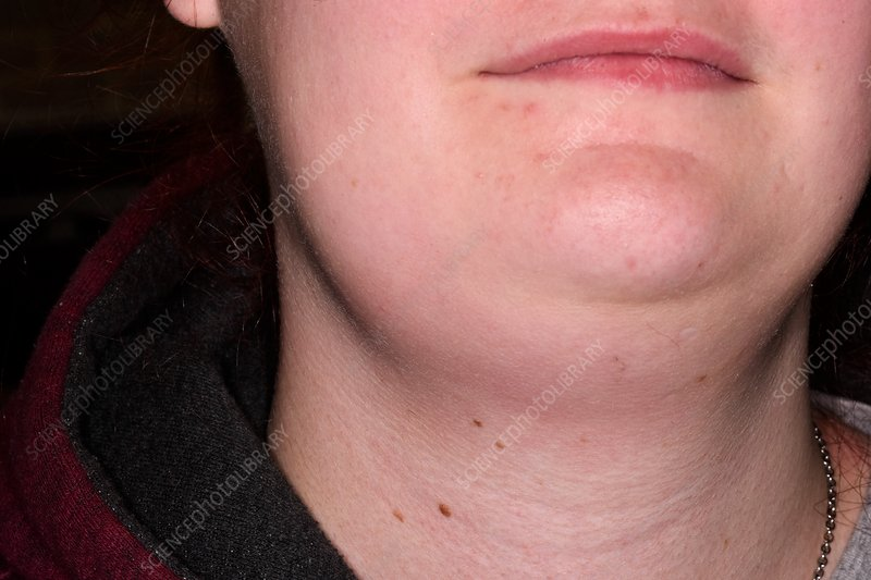 Swollen lymph glands in neck - Stock Image C034/5527 - Science Photo ...