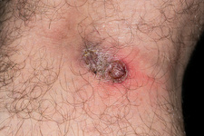 Cutaneous leishmaniasis lesion