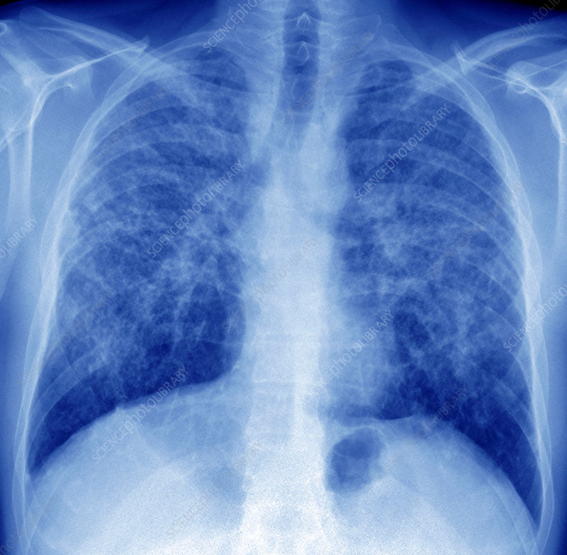 Fibrous pulmonary sarcoidosis, coloured X-ray