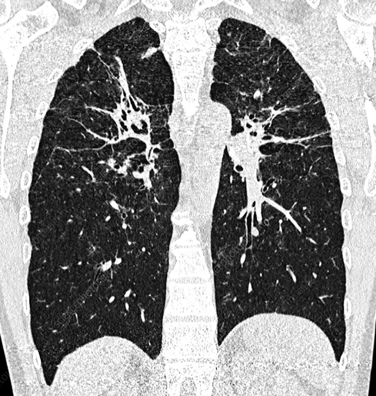 Fibrous pulmonary sarcoidosis, CT scan